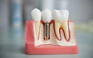Имплантация зубов по шаблонам