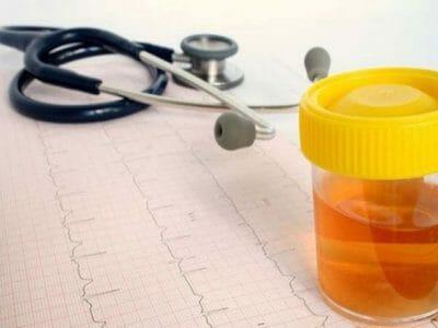Цистит: симптомы, лечение