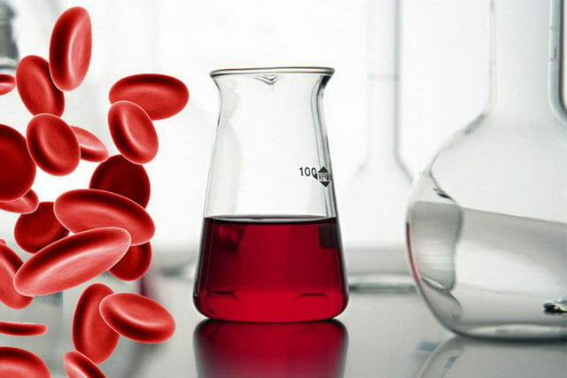 Что делать при цистите с кровью