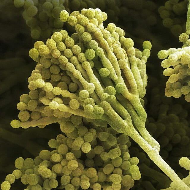 Антибиотик во время цистита у женщин быстрого действия: список препаратов