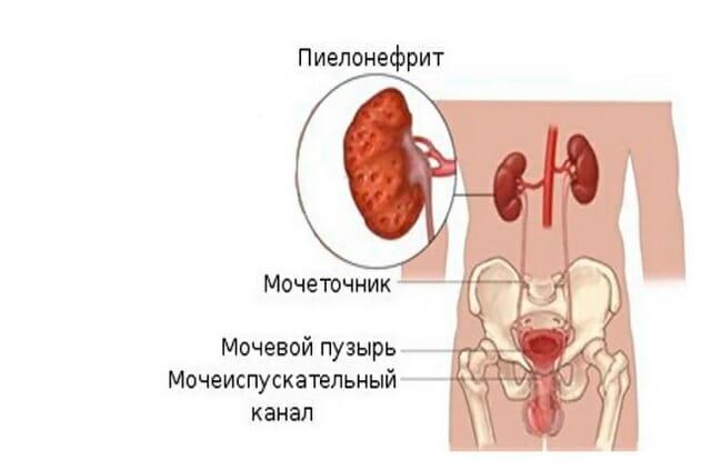 Пиелонефрит осложнения у женщин